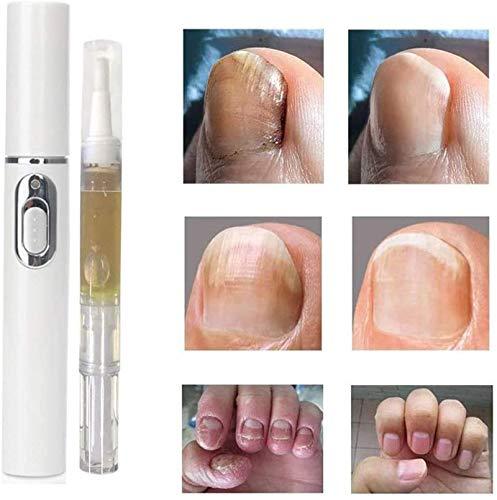 2 pcs Anti-fungal Home Treatment Set Toe Nail Treatment Pen, Toe Nail Treatment Pen,Onychomycosis Antibacterial Liquid,Paronychia Cream,Sterilizing Sterilization