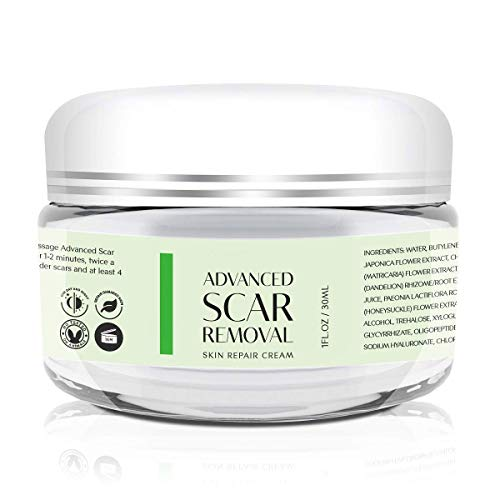 Scar Removal Cream - Advanced Treatment for Face & Body, Old & New Scars from Cuts, Stretch Marks, C-Sections & Surgeries - With Natural Herbal Extracts Formula