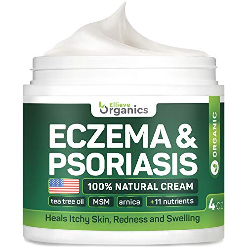 Psoriasis & Eczema Cream - Natural Eczema Treatment with Tea Tree Oil, MSM, Honey & Arnica - Made in USA - Powerful Dermatitis, Irritation & Psoriasis Treatment - Steroid-Free Psoriasis Cream - 4OZ