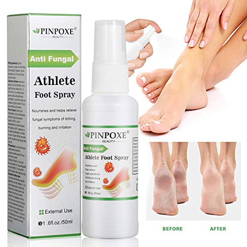 Foot Spray, Natural formula, Athletes Foot, Ringworm, Jock Itch and Foot Infections. Effectively Soothes in Minutes-Fights Against